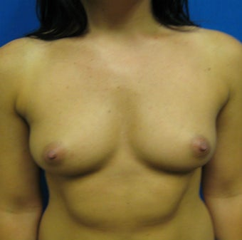 Breast Augmentation, Breast Implants before 1114928
