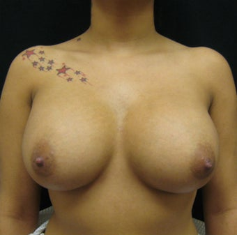 Breast Augmentation, Breast Implants after 1114928