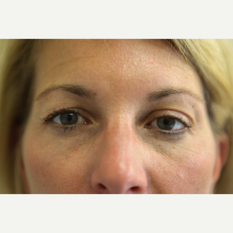 45-54 year old woman treated with Eyelid Surgery before 3768082