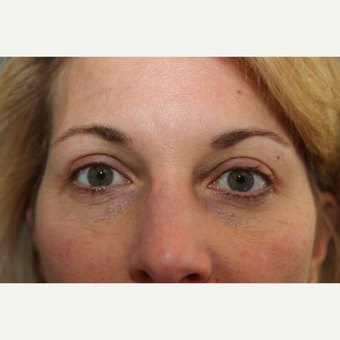 45-54 year old woman treated with Eyelid Surgery after 3768082