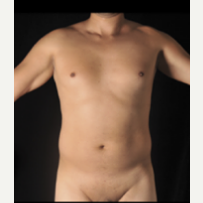 25-34 year old man treated with Liposculpture before 3355147