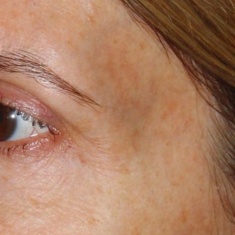 53 year old woman treated for blue veins around eyes and temples 1956282