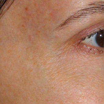 53 year old woman treated for blue veins around eyes and temples after 1956282