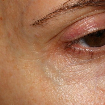 53 year old woman treated for blue veins around eyes and temples before 1956282