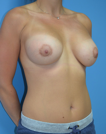 Shaped Breast Implants after 1579734