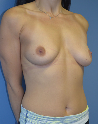 Shaped Breast Implants before 1579734