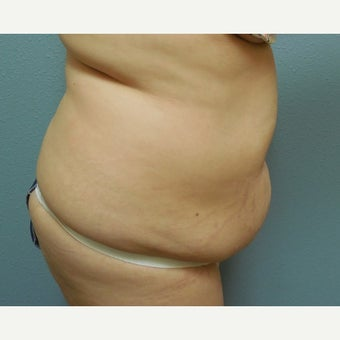 25-34 year old woman treated with Tummy Tuck 1574892