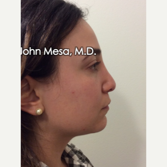 25-34 year old woman treated with Buccal Fat Removal before 3769134