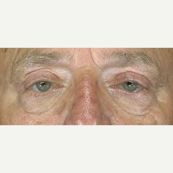65-74 year old man treated with Eyelid Surgery after 3251967