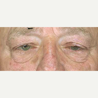65-74 year old man treated with Eyelid Surgery before 3251967