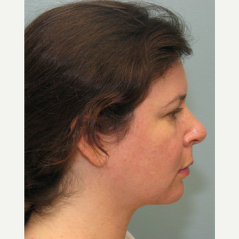 35-44 year old woman treated with Smart Lipo after 3143216