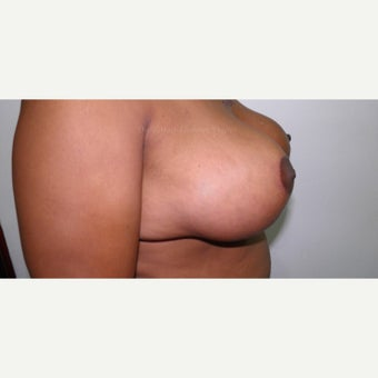 45-54 year old woman treated with Breast Lift after 1862179