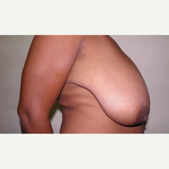 45-54 year old woman treated with Breast Lift before 1862179
