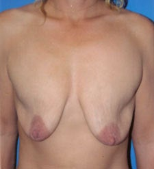Breast Lift Surgery after Weight Loss before 818168