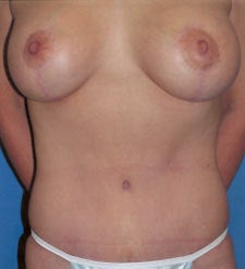 Breast Lift Surgery after Weight Loss after 818168