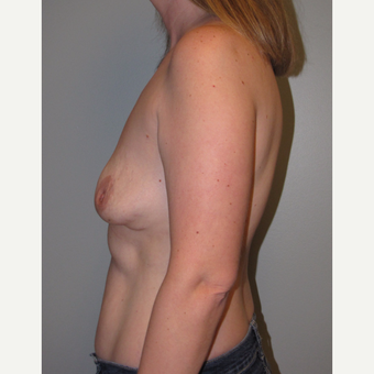 35-44 year old woman treated with Breast Lift with Implants before 3136642