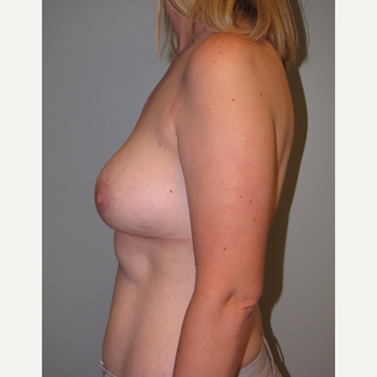 35-44 year old woman treated with Breast Lift with Implants after 3136642