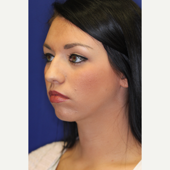25-34 year old woman treated with Chin Liposuction after 3260035