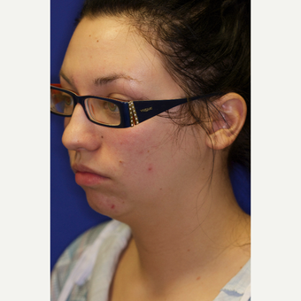 25-34 year old woman treated with Chin Liposuction before 3260035
