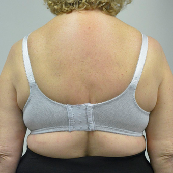 65-74 year old woman treated with Upper Body Lift/ Bra Line Back Lift after 3850401