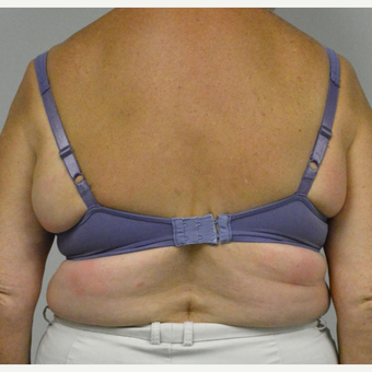 65-74 year old woman treated with Upper Body Lift/ Bra Line Back Lift before 3850401