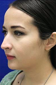 Rhinoplasty before 3202631