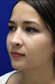 Rhinoplasty after 3202631