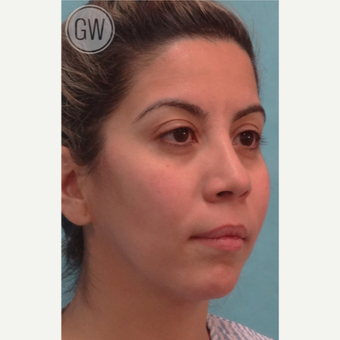 25-34 year old woman treated with Nose Surgery before 3477976
