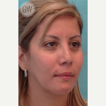 25-34 year old woman treated with Nose Surgery after 3477976