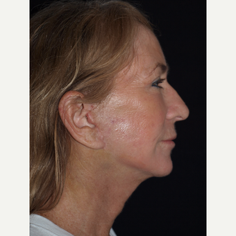 57 year old woman treated with Facelift, Necklift, Upper Blepharoplasty, Fat Grafts & TCA Peel after 3773572