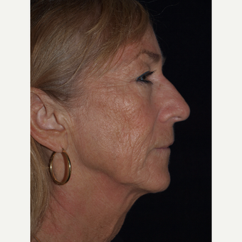 57 year old woman treated with Facelift, Necklift, Upper Blepharoplasty, Fat Grafts & TCA Peel before 3773572