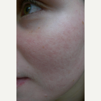 rosacea acne treated with lasers after 3125370