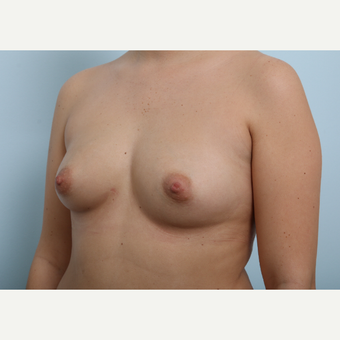 Breast Augmentation before 3425432