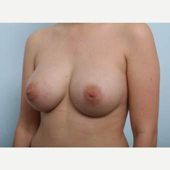 Breast Augmentation after 3425432
