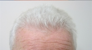 Hair Transplant after 387807