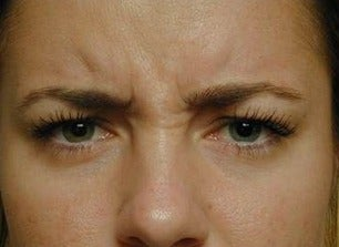 Botox for Frown Lines before 968632