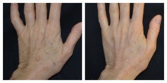 54 Year Old Female Treated for Sun Spots on an Aging Hand before 1367269