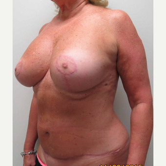 Mommy Makeover for a 61 Year Old Woman after 3005965