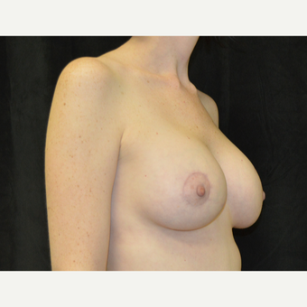 35-44 year old woman treated with Breast Lift with Implants after 3181990
