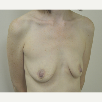 35-44 year old woman treated with Breast Lift with Implants before 3181990