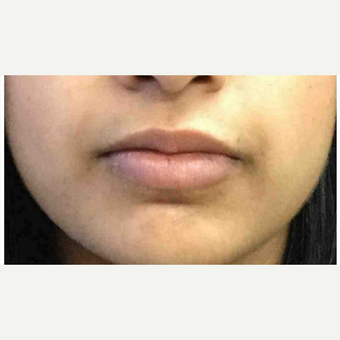 25-34 year old woman treated with Injectable Fillers after 3219663