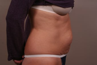49 year old Tummy Tuck 1006313
