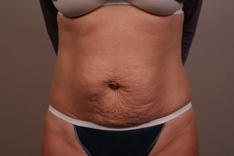 49 year old Tummy Tuck before 1006313