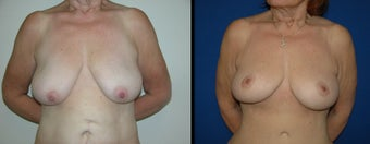 53 Year Old Woman - Breast Lift with Augmentation before 1094099