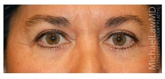 Eye Bag Surgery after 1256422