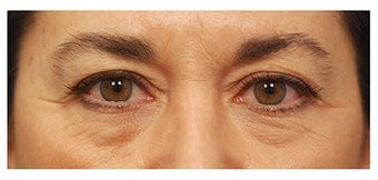 Eye Bag Surgery before 1256422