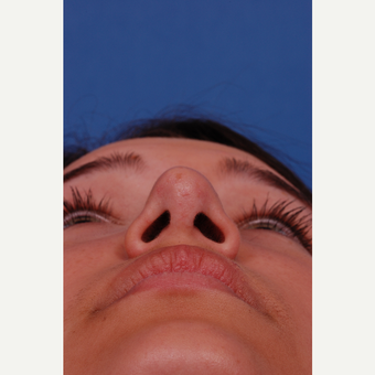 17 or under year old woman treated with Rhinoplasty after 3175258