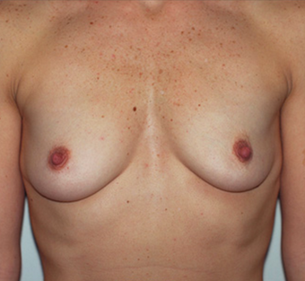 25-34 year old woman treated with Breast Augmentation before 3549628
