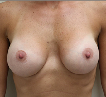 25-34 year old woman treated with Breast Augmentation after 3549628