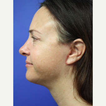 35-44 year old woman treated with Facelift after 3405549